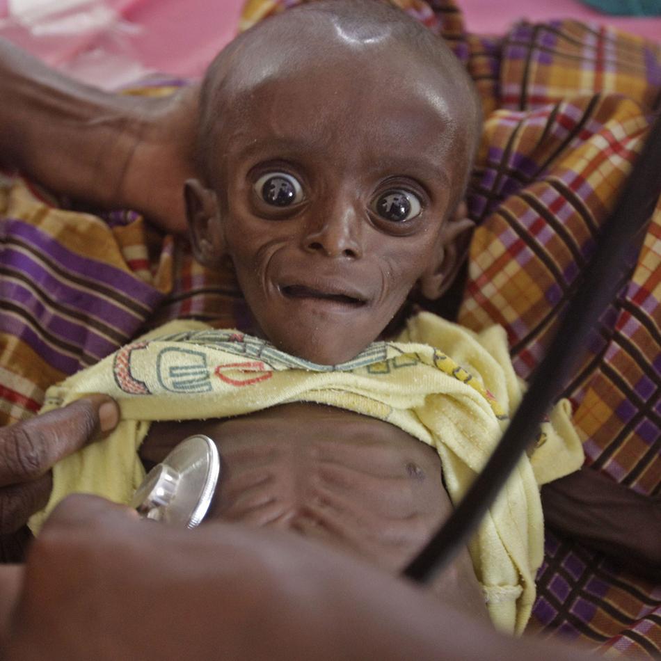 Ο Mihag Gedi Farah, επτά μηνών μωρών, κρατείται από τη μητέρα του σε ένα νοσοκομείο της Διεθνούς Επιτροπής Διάσωσης στην Κένυα. Το μωρό από τότε επανήλθε πλήρως σε φυσιολογική κατάσταση.