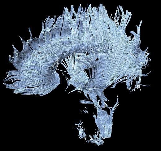 8-brains-axons-break-down-8
