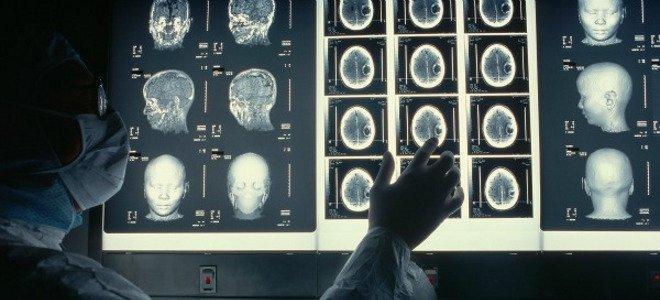 Πόσο διαφέρει ο εγκέφαλος ενός «αριστερού» από εκείνον ενός «δεξιού»;