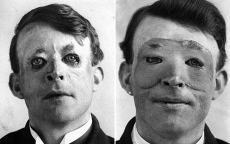 Walter Yeo, ένας από τους πρώτους ανθρώπους που υποβλήθηκαν σε προηγμένη πλαστική χειρουργική και μεταμόσχευση δέρματος.