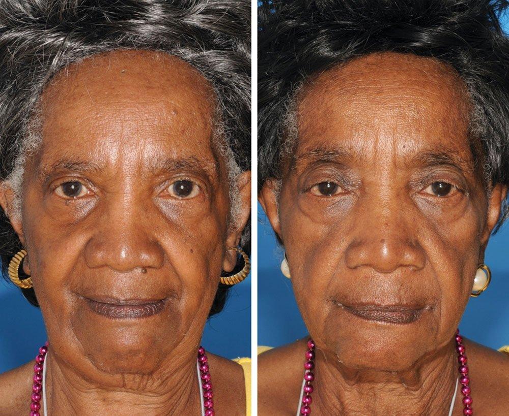 Κάπνισμα και γήρανση - 4