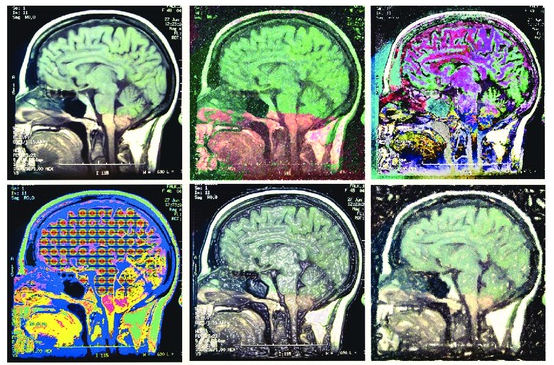 brain2222