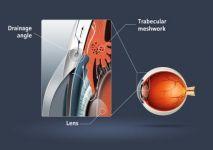 asthenies.glafkoma.dimiourgia-endofthalmias-piesis