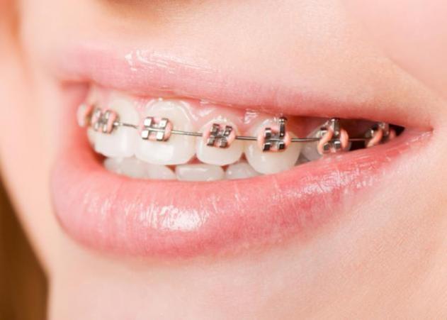 Σιδεράκια στα δόντια