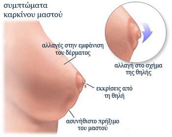 Συμπτώματα καρκίνου μαστού