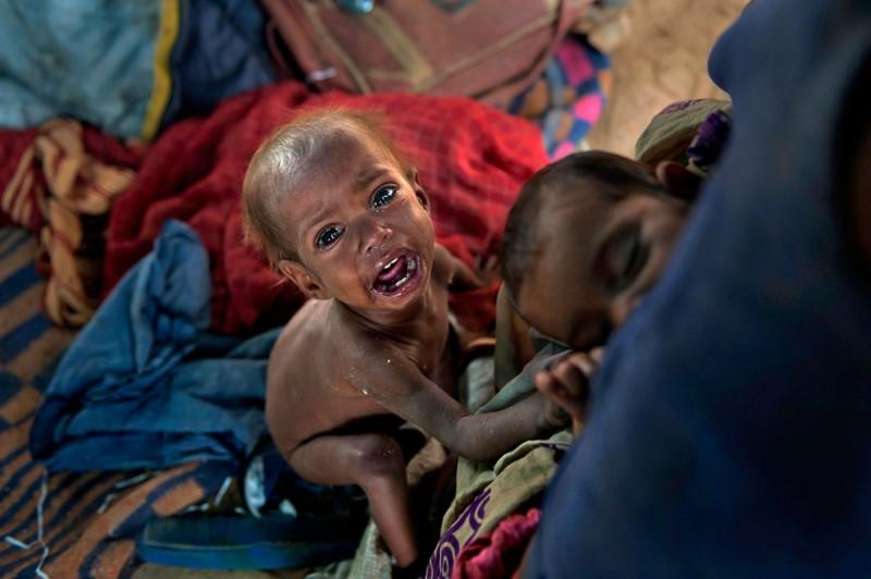 Η δίχρονη Σαντζέτα από την Ινδία κλαίει μπροστά από την θεία της επειδή πεινάει. Η εννέα μηνών ξαδέρφη της κοιμάται στην αγκαλιά της μητέρας της. Περισσότερα από 19.οοο παιδιά στην Ινδία πεθαίνουν κάθε μέρα από ασιτία και από τις κακουχίες καθώς αναγκάζονται να είναι όλη την ημέρα μαζί με την μητέρα τους στον δρόμο και να ζητιανεύουν. Η θέα ενός υποσιτισμένου παιδιού προκαλεί την συμπάθεια του κόσμου που δίνει παραπάνω χρήματα. Η Σαντζέτα είναι πιο τυχερή καθώς φιλοξενείται σε ίδρυμα, μακριά από την μητέρα της που την ταλαιπωρούσε.