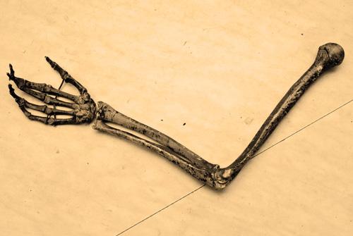 skeletonarm