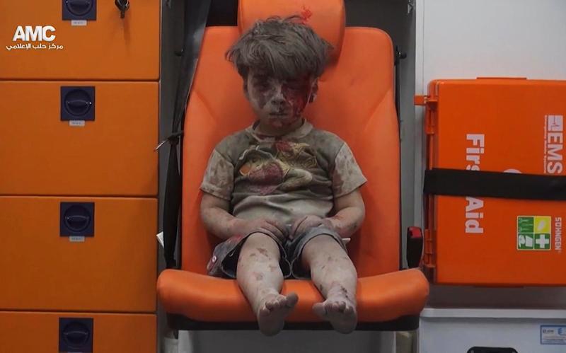 Συρία: Η συγκλονιστική φωτογραφία του 5χρονου στο Χαλέπι 17/8 (Aleppo Media Center via AP, File)